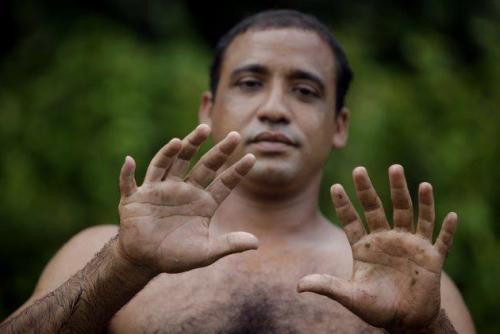Bạn mất bao lâu để nhận ra được sự khác biệt cúa người đàn ông này :)