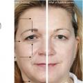 Căng da mặt không phẫu thuật giúp bạn đẹp hơn