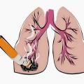 Những hóa chất gây ung thư phổi bạn cần biết