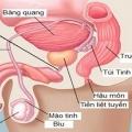 Bệnh viêm tuyến tiền liệt và viêm túi tinh