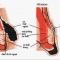 Những biểu hiện và triệu chứng của bệnh trĩ