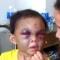 Bé 4 tuổi bị bạo hành  đến biến dạng, cặp vợ chồng đánh bé  ko chứng minh dc quan hệ pháp lý