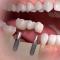 Trồng răng implant có nguy hiểm không? <<< Câu Trả lời chi tiết