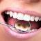 """Chia sẻ kinh nghiệm niềng răng thẩm mỹ cho những ai sắp """"lâm trận"""""""