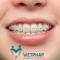 Niềng răng là gì? Niềng răng mang lại lợi ích ra sao?