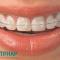 Niềng răng hàm trên bao nhiêu tiền là rẻ nhất ?