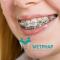Niềng răng mắc cài kim loại giá bao nhiêu là hợp lý ?