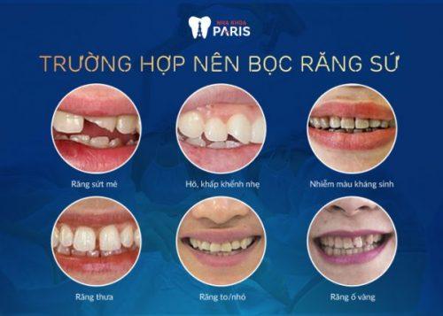 Làm răng sứ thẩm mỹ cho 2 răng cửa xấu: Những điều cần biết